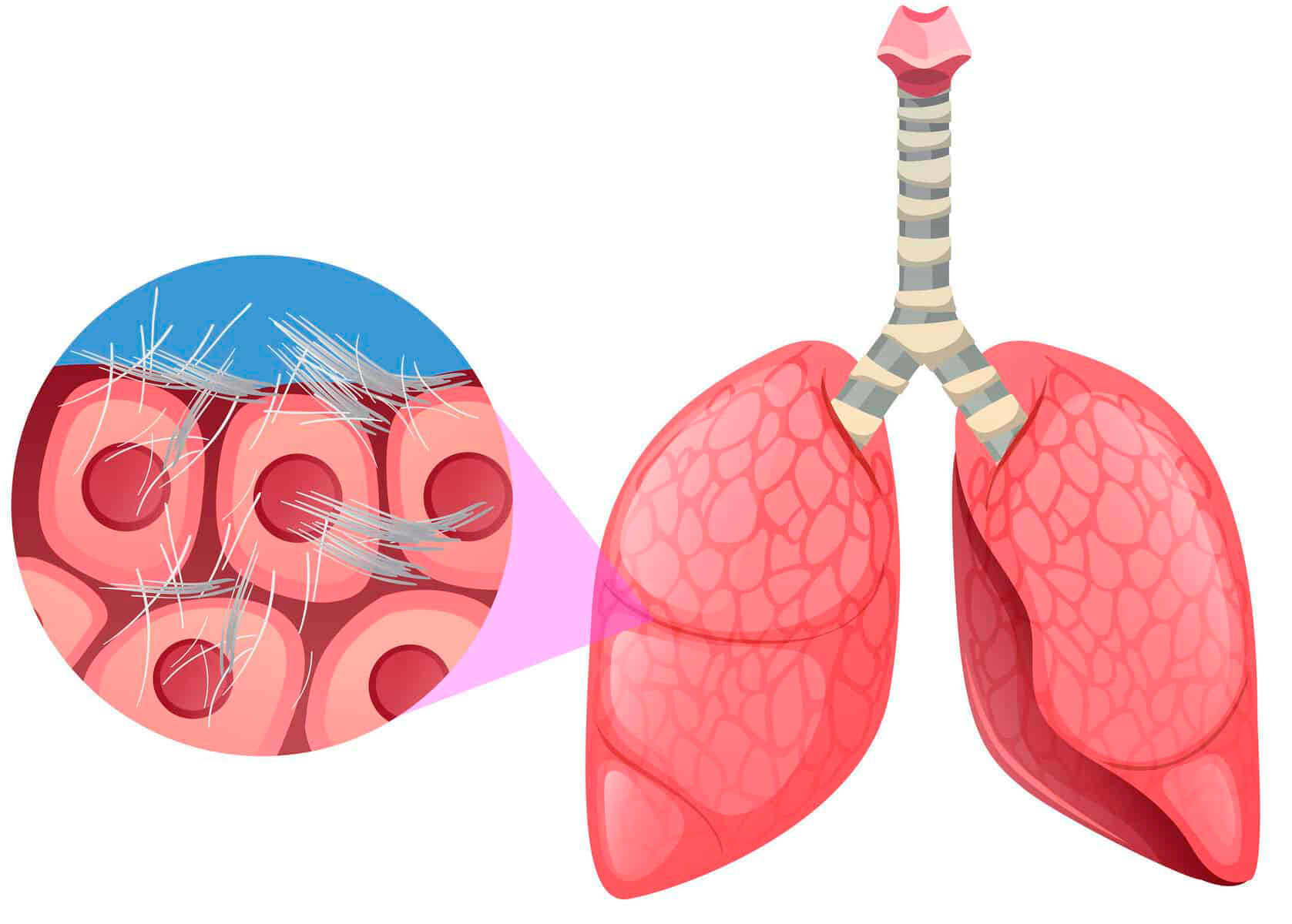 asbestos-fibres-in-lung